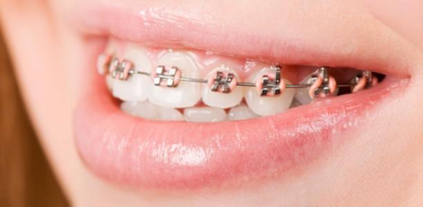 Ab welchem Alter macht eine Zahnspange wirklich Sinn?